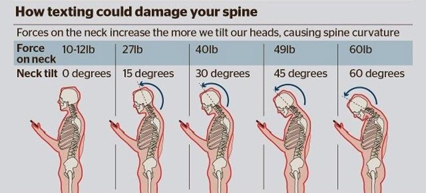 Pritisak na vrat prilikom savijanja (printscreen / physio-pedia.com)