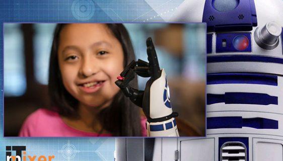 Devojčica dobila bioničku ruku sa motivima robota R2-D2 iz Ratova zvezda